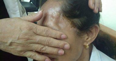Bà Phượng 2 lần mổ não do tai biến đã hồi phục nhờ An Cung Trúc Hoàn