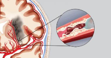 Tai biến mạch máu não, chảy máu não, xuất huyết não