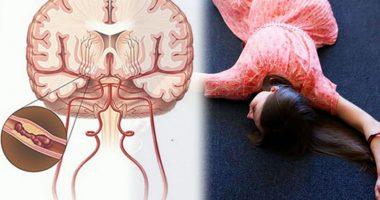 6 phương pháp phòng ngừa tai biến mạch máu não (Vinamilk)