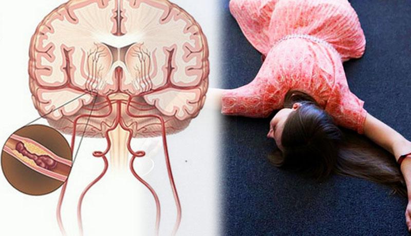 phòng ngừa tai biến mạch máu não