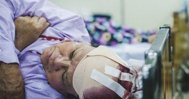 Vỡ mạch máu não, Đứt mạch máu não có cứu được không?