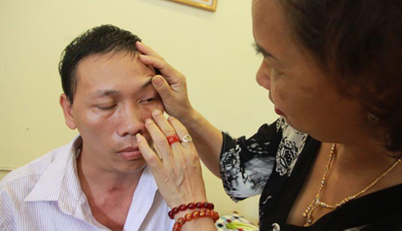 Lương y Nguyễn Quý Thanh kiểm tra tình trạng bệnh nhân.