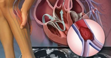 viêm tắc mạch chi